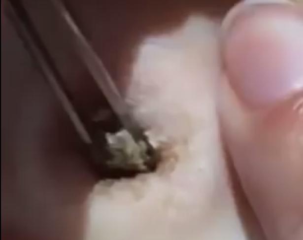 Nabelstein entfernen
