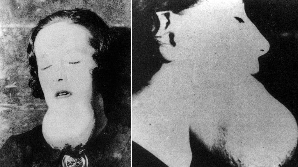 Front- und Profilansicht einer Zifferblattmalerin mit radiumbedingtem Sarkom am Kinn