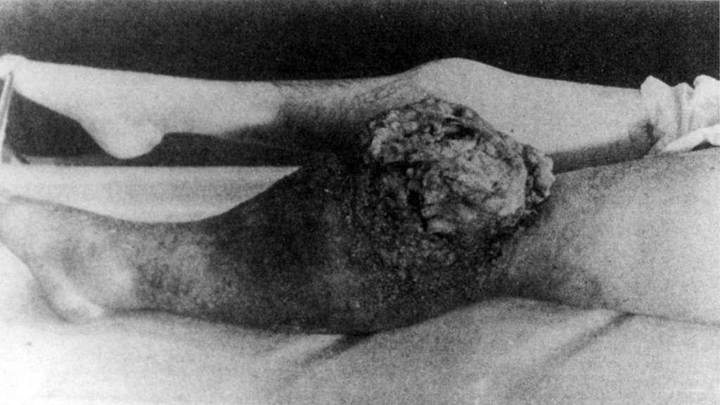 Eine Zifferblattmalerin mit radiumbedingtem Tumor am Knie