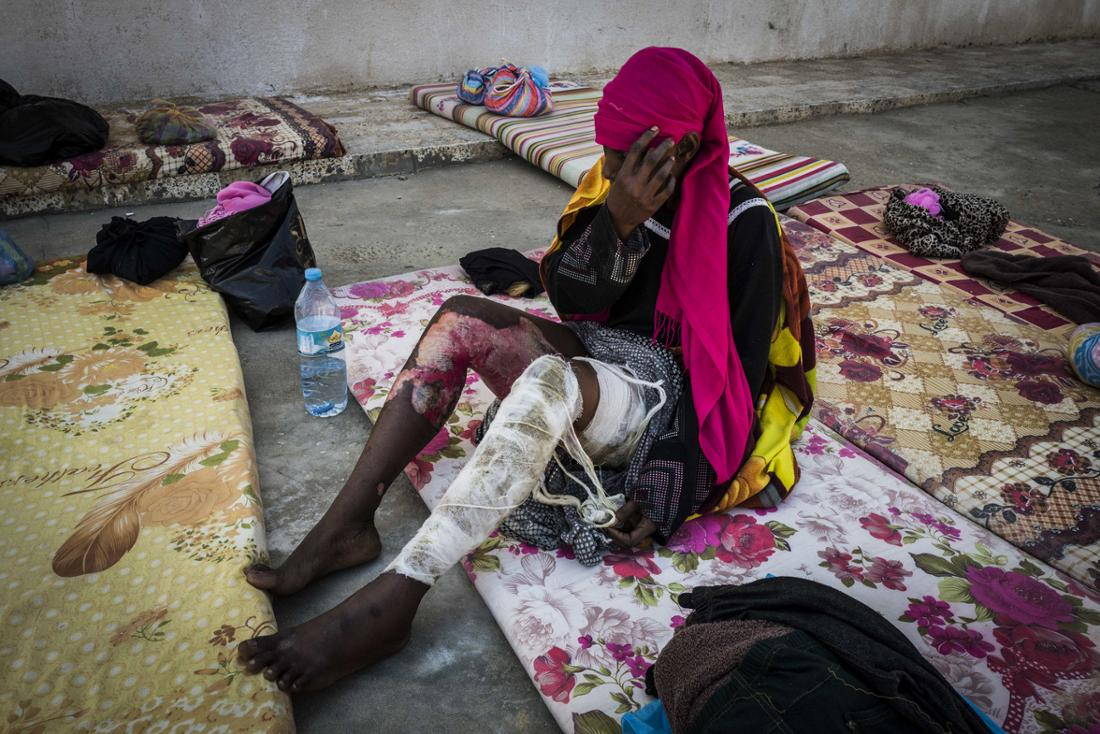 Eine Frau mit schweren Verätzungen sitzt im April 2017 in einer Sammelzelle im Internierungslager Trig al Matar bei Tripolis.