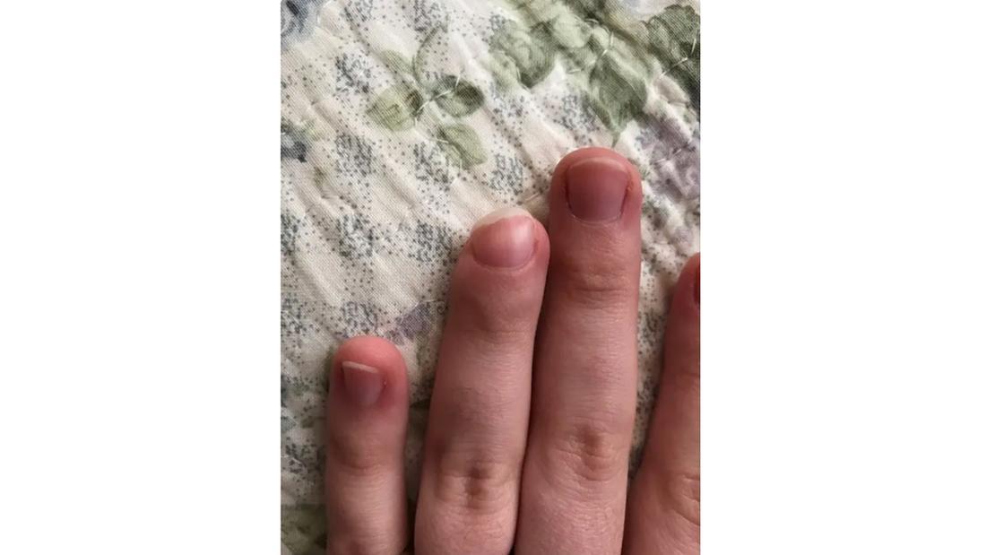 Ein Bild eines Ringfingers, dessen Spitze und Nagel nicht ganz richtig gewachsen sind
