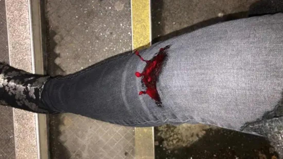 Eine Hose, aus der aus dem Kniebereich Blut sickert