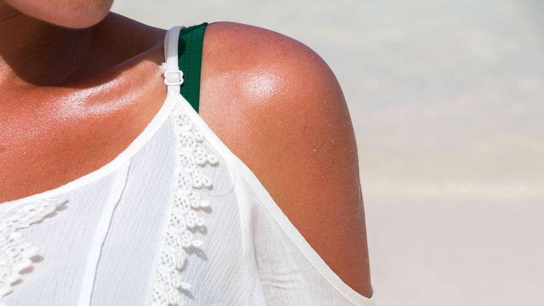 Ein Sonnebrand auf dem Arm einer Person
